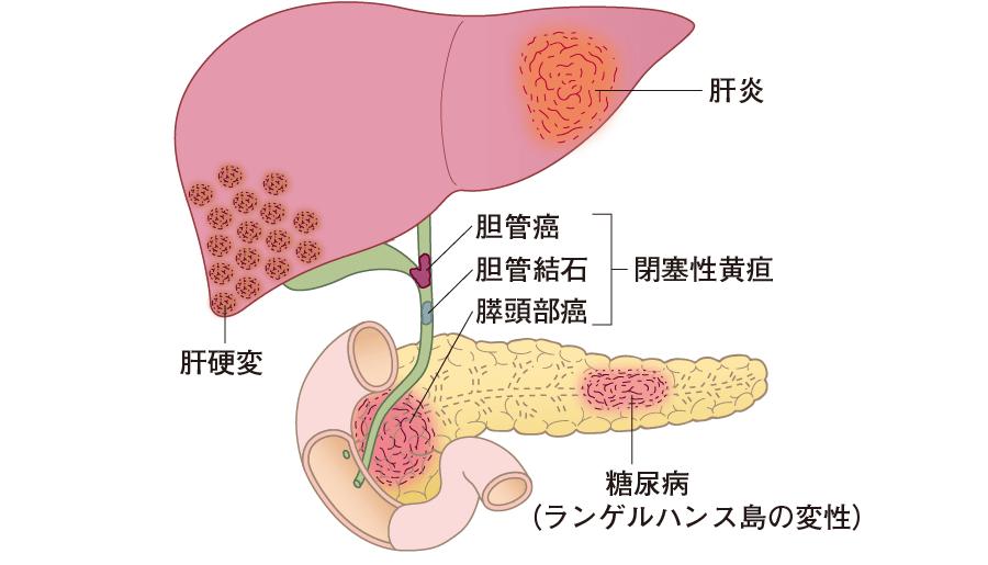 尿検査で異常値を示す肝・胆道系のおもな疾患