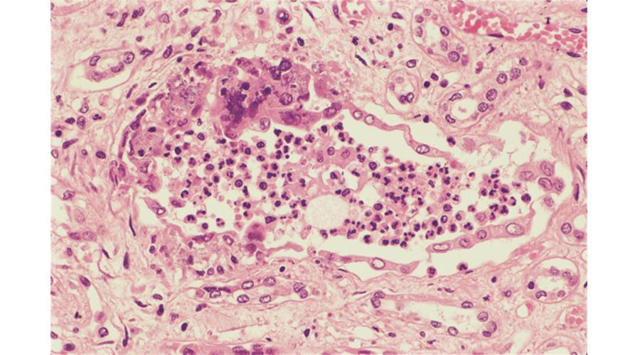 慢性腎盂腎炎(腎尿細管内の好中球浸潤)
