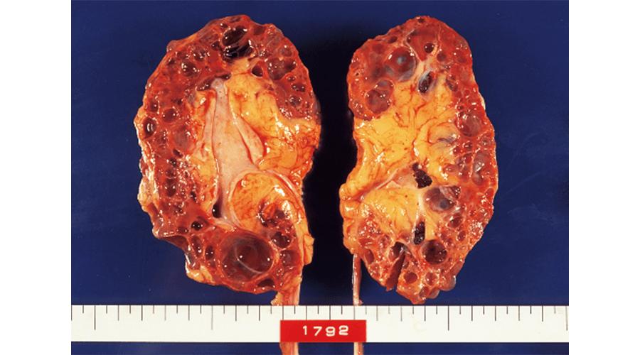 多発性嚢胞腎による腎不全