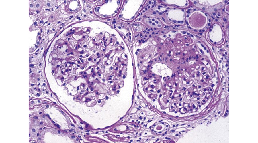 糸球体腎炎症例組織像 (メサンジウム増殖性糸球体腎炎)