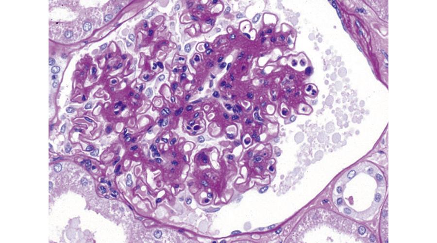 糸球体腎炎
