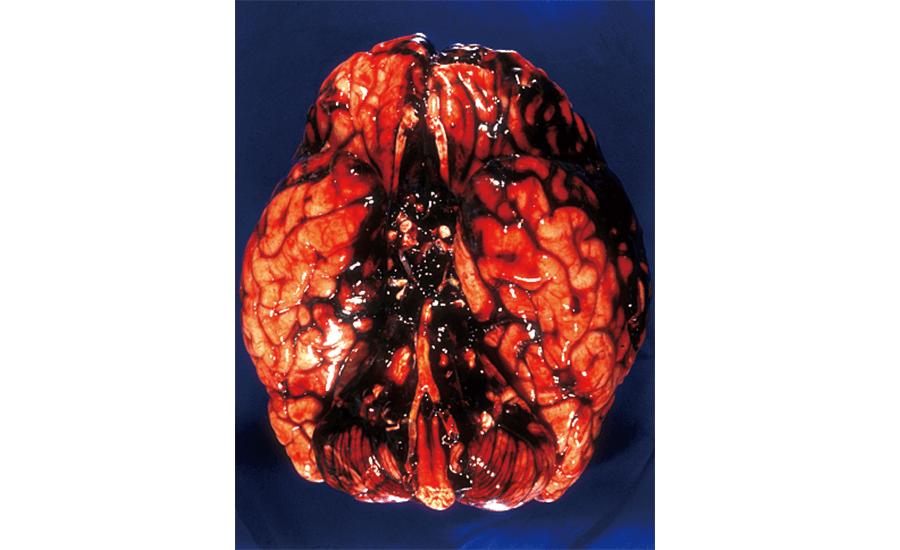 クモ膜下出血(脳動脈瘤の破裂による)