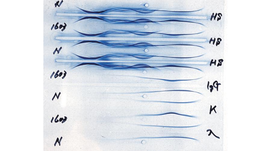 IgG・κ型骨髄腫の免疫電気泳動