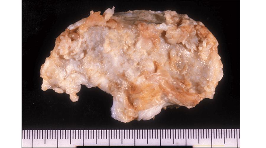 関節リウマチ症例の関節の変形(関節面からの肉眼像)