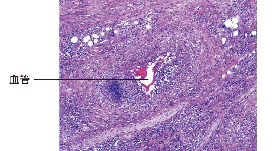 Wegener肉芽腫症:組織像(咽頭内の肉芽腫性炎症)