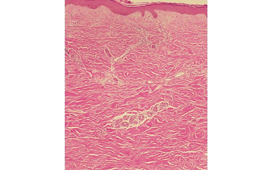 進行性全身性強皮症(PSS)の皮膚病変