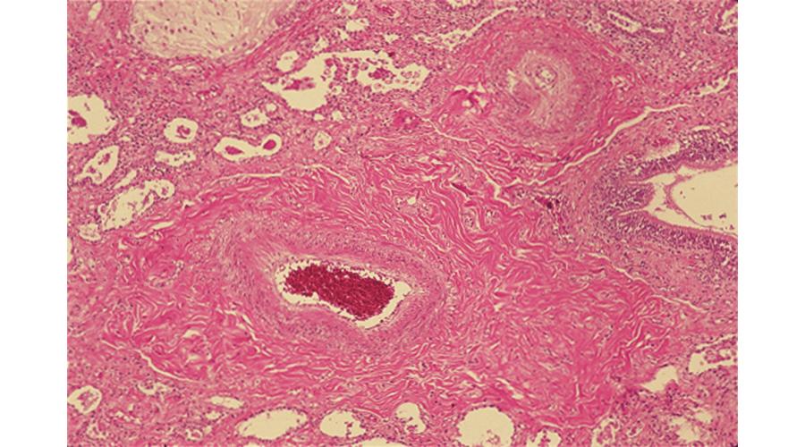 進行性全身性強皮症(PSS)の肺病変