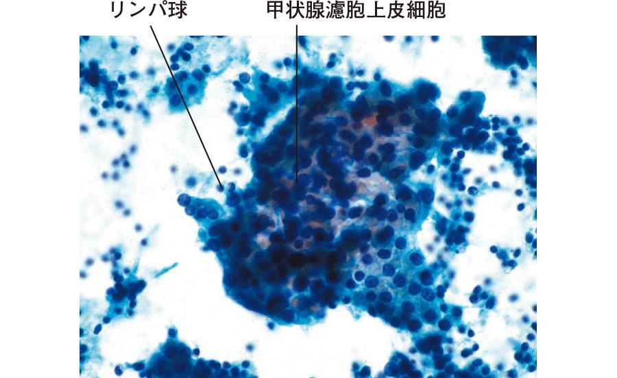 橋本病の細胞像