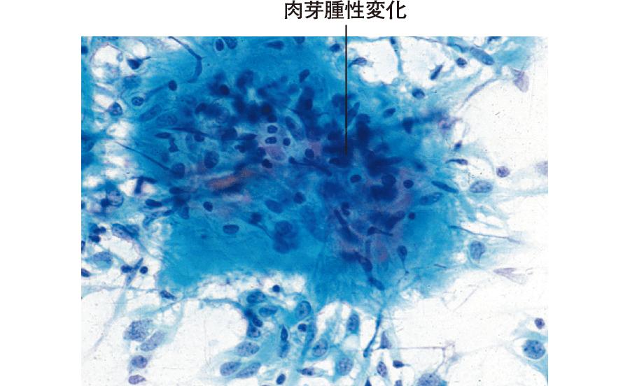 亜急性甲状腺炎の細胞像