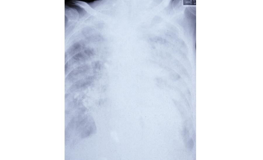 肺炎の胸部X線像