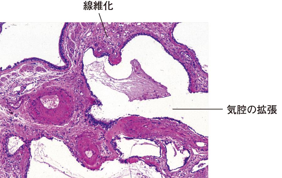 間質性肺炎の組織像