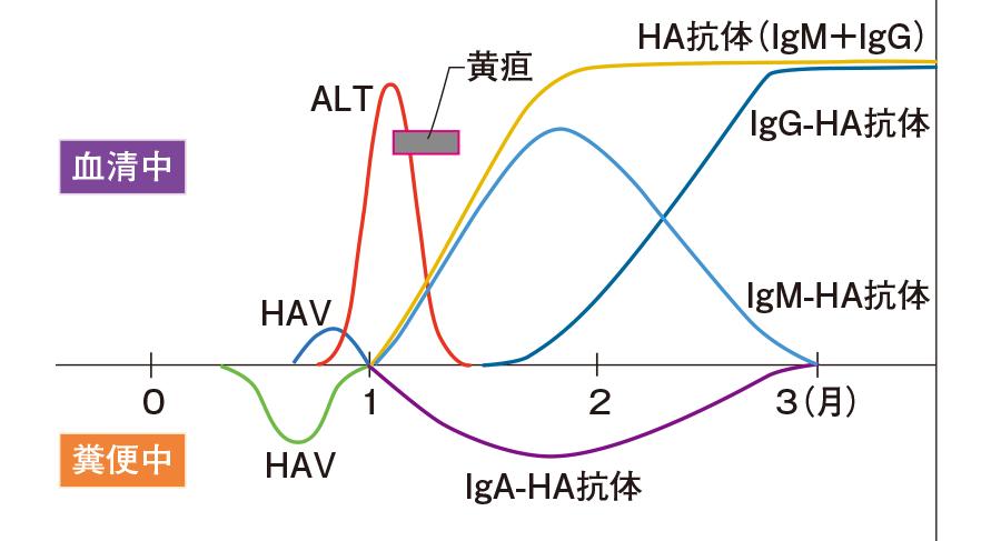 A型肝炎の臨床経過と抗体