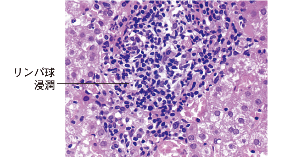 慢性肝炎の組織像
