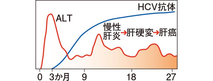 HCV感染の経過