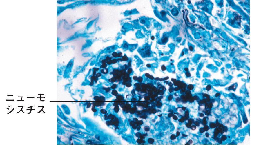 ニューモシスチス肺炎の組織所見(AIDS症例にしばしば認められる)