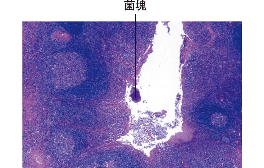 扁桃腺炎症例にみられた扁桃陰窩内の菌塊