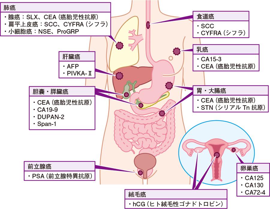 マーカー ゴロ 腫瘍