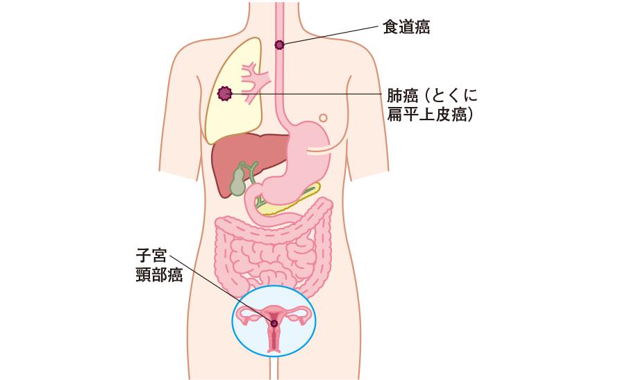 肺扁平上皮癌