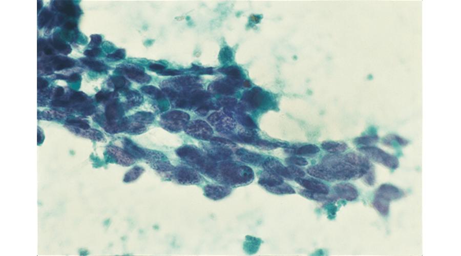 """値 nse 基準 神経損傷マーカー""""神経細胞特異的酵素(NSE)""""は炎症があると神経細胞ではなくグリア細胞で産生される"""