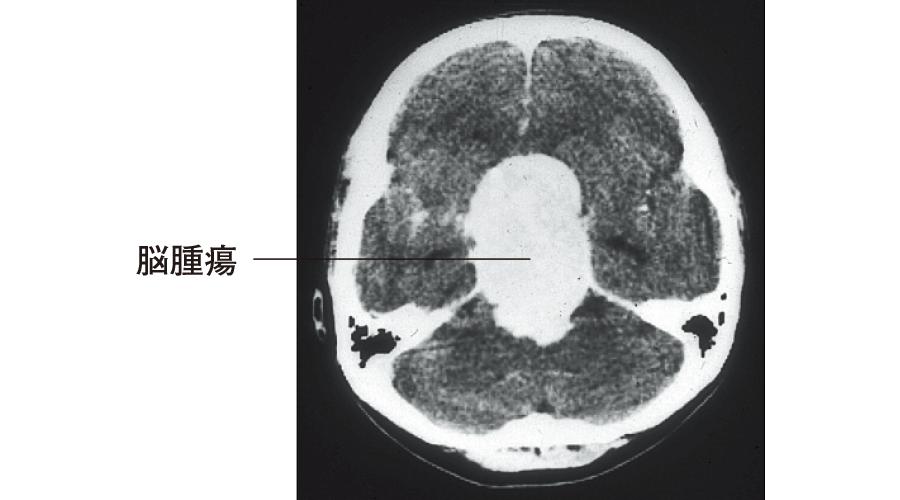 視床下部障害を伴った脳腫瘍