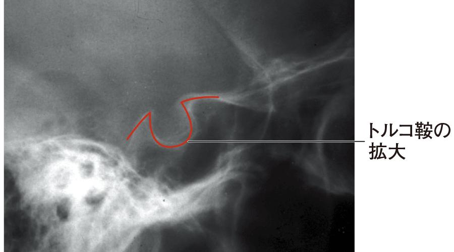 下垂体腫瘍によるトルコ鞍