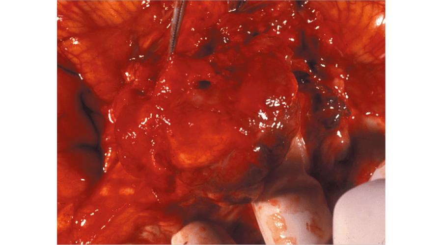 視床下部障害を伴った脳腫瘍肉眼像(髄膜腫)