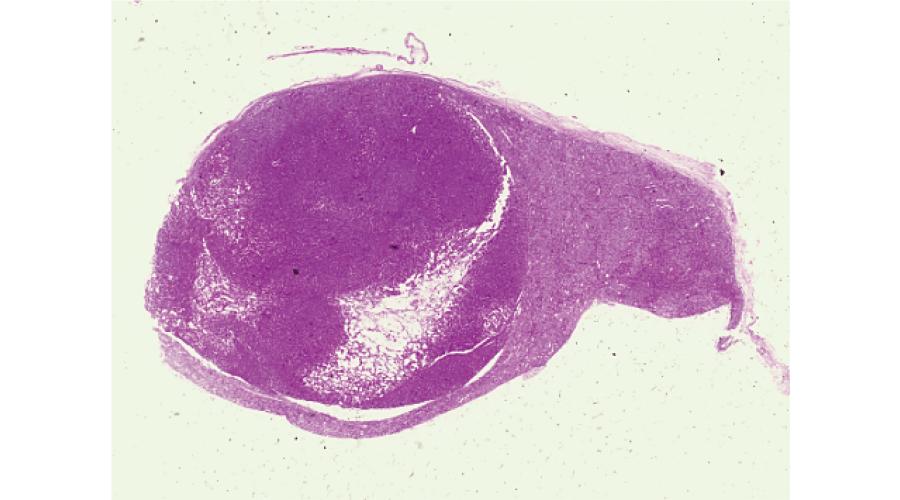 下垂体腫瘍(下垂体腺腫)の組織標本