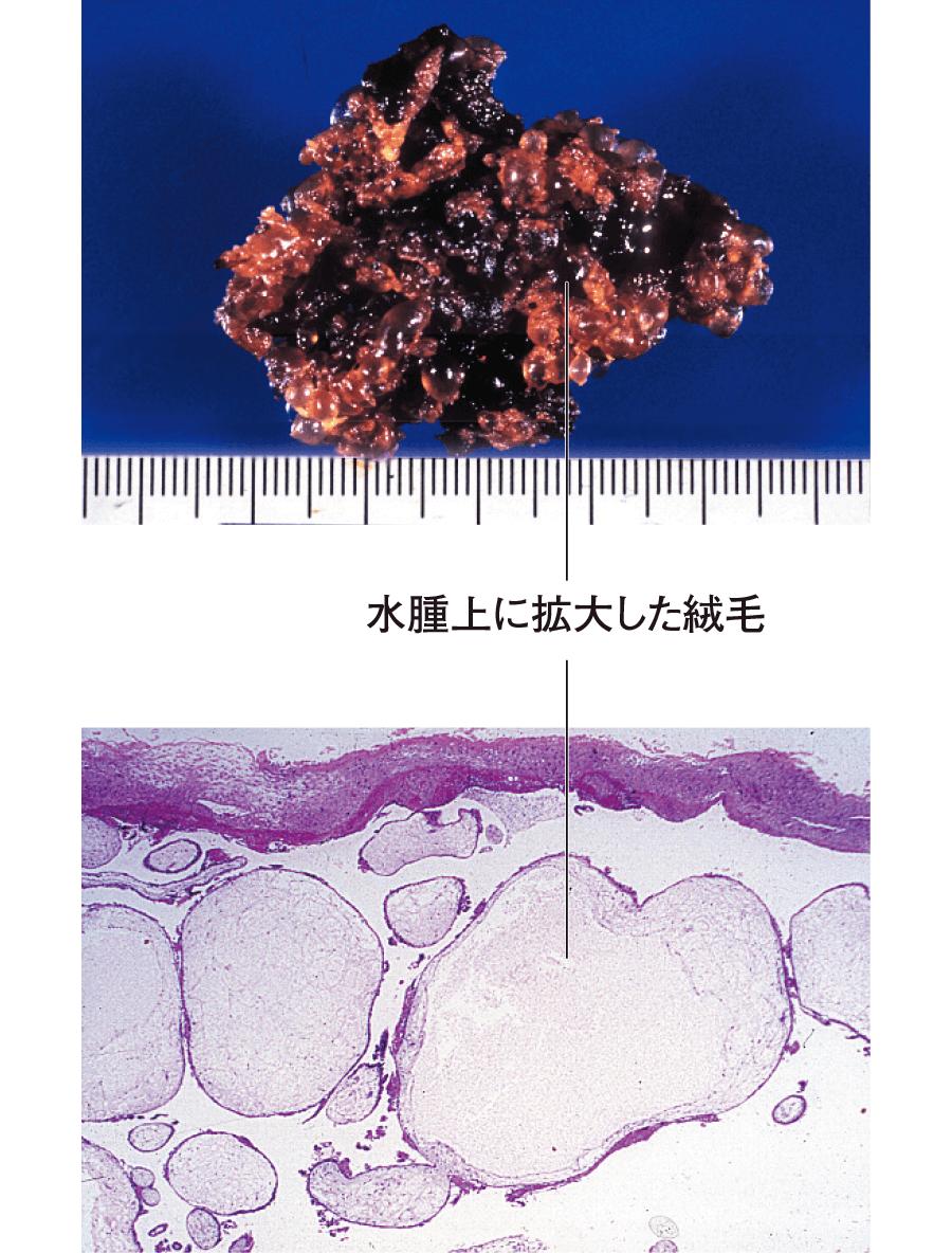 胞状奇胎の肉眼像