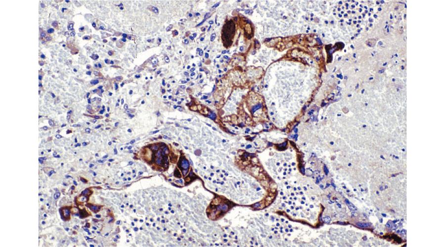 絨毛癌のhCG免疫染色