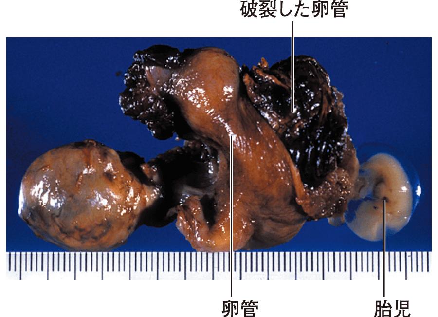 子宮外妊娠(卵管妊娠)の肉眼像