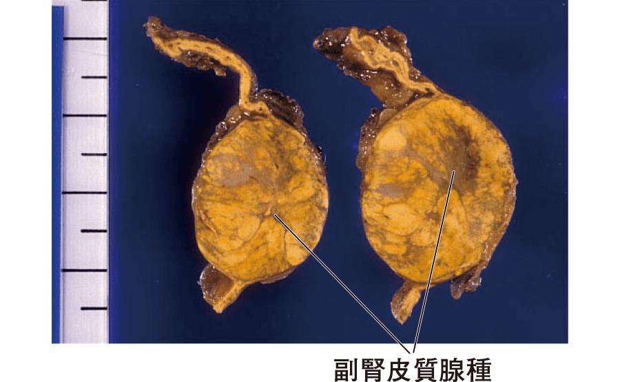 クッシング症候群を示した副腎皮質腺腫(副腎の割面)