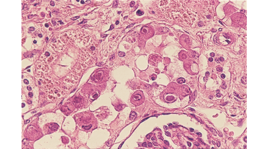 サイトメガロウイルス感染症:サイトメガロウイルス感染細胞