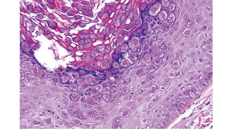 伝染性軟属腫:みずいぼ 皮膚組織像