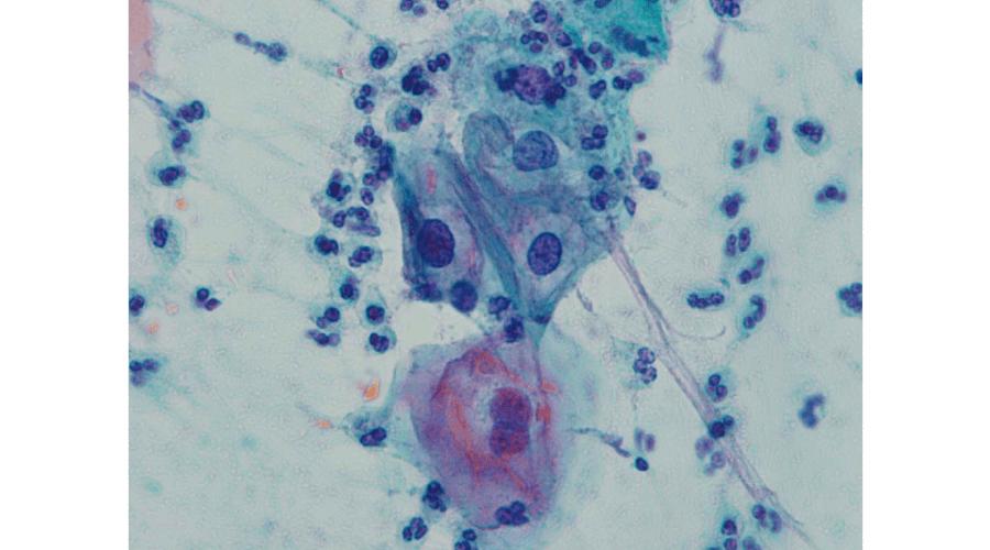 ヒト乳頭腫ウイルス感染を伴った子宮頸部異形成