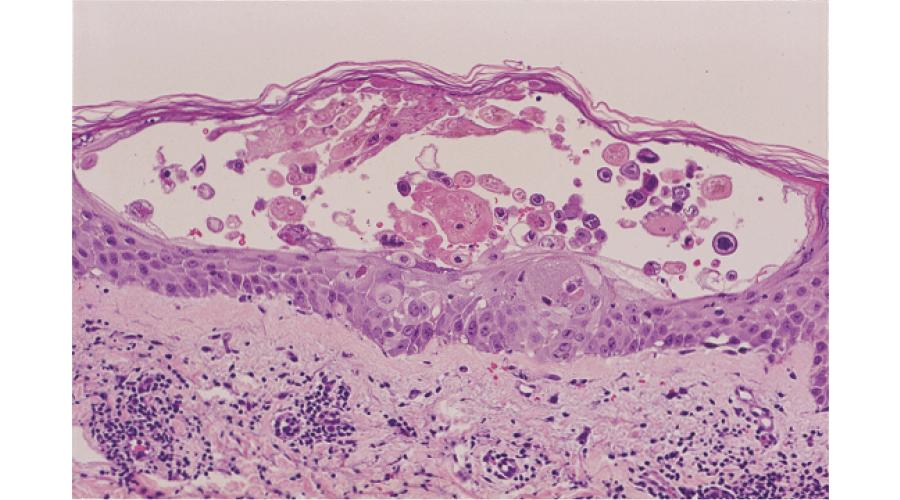 ヘルペスウイルス感染組織像