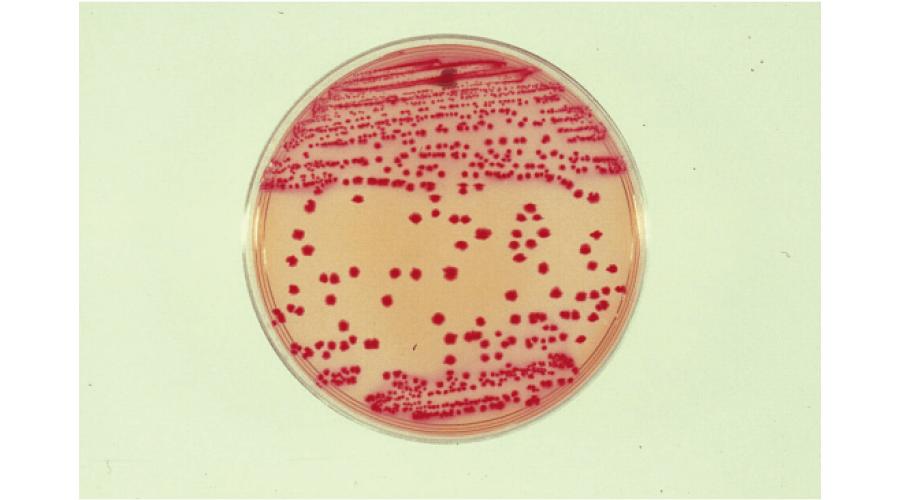 培地内の緑膿菌(普通寒天培地)