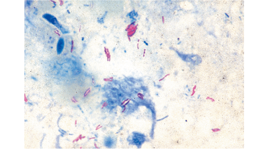 チールネルゼン染色(抗酸菌染色)
