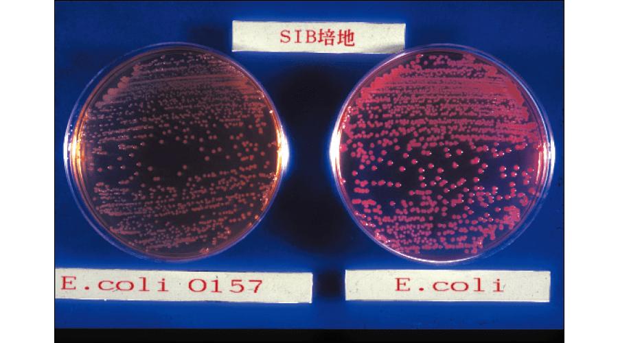 各種培地内の大腸菌O157および大腸菌