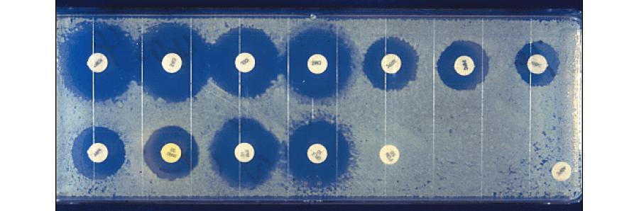 薬剤感受性検査:ディスク法(大腸菌)