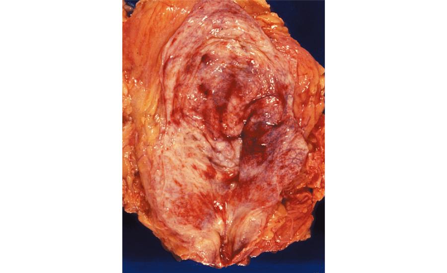 膀胱炎:出血を伴う膀胱粘膜の炎症