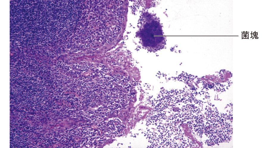 同組織像:菌塊を伴う扁桃の炎症