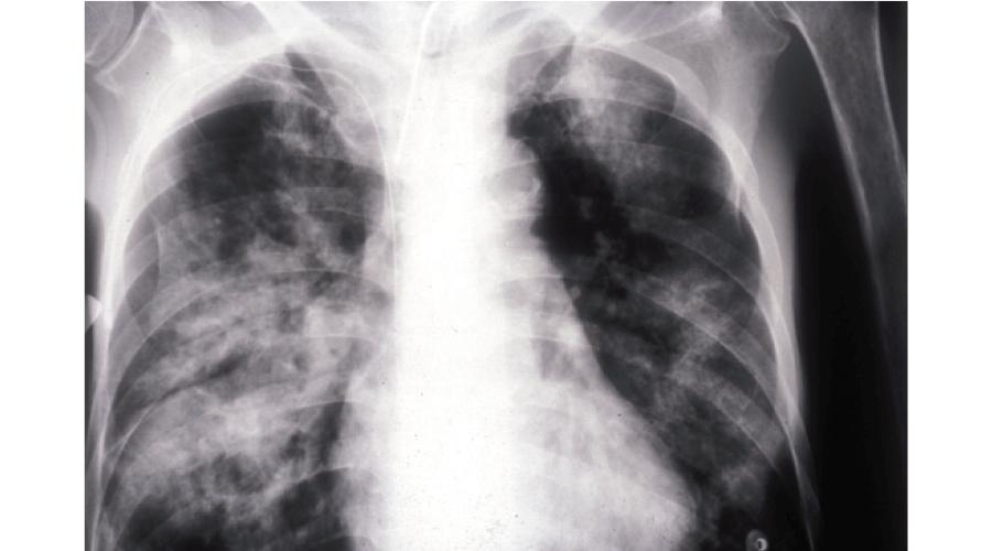 気管支肺炎症例胸部X線像