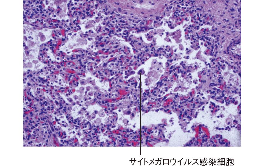サイトメガロウイルス肺炎