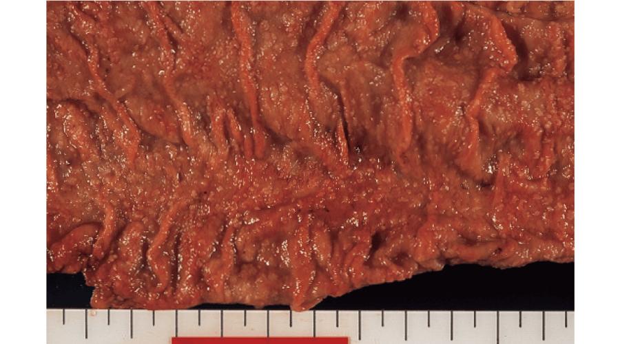 偽膜性腸炎:大腸粘膜の肉眼像