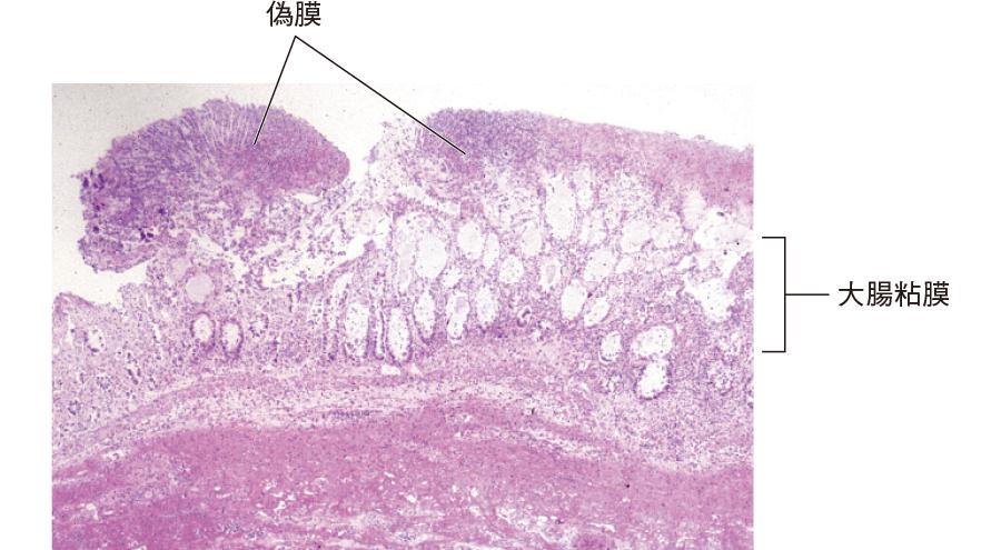偽膜性腸炎:大腸粘膜組織像