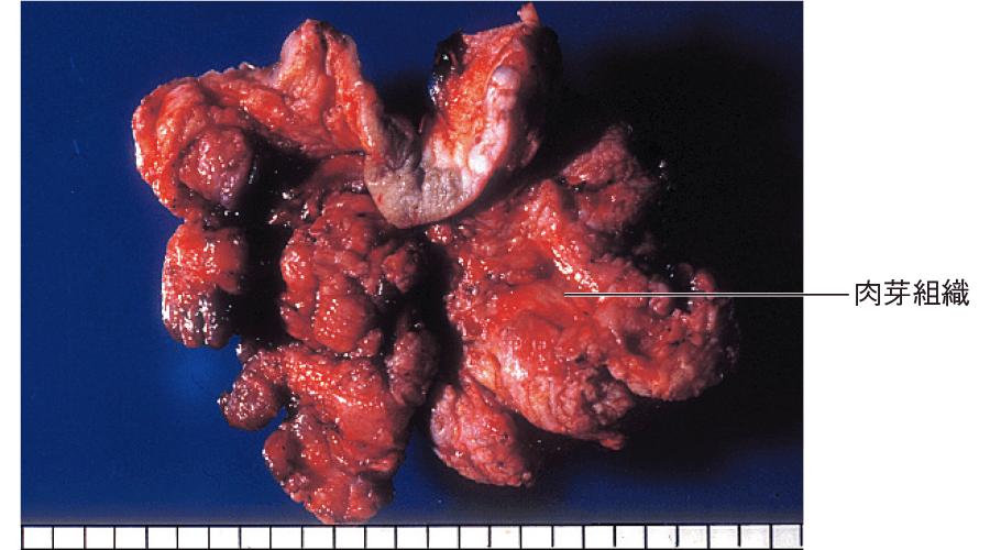 皮下の化膿性病巣(肉芽を伴う化膿性炎)