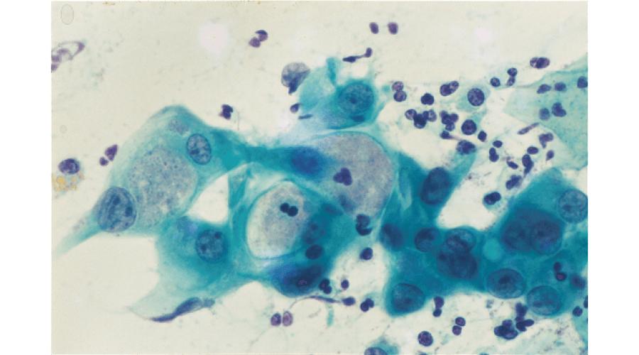 クラミジア感染細胞