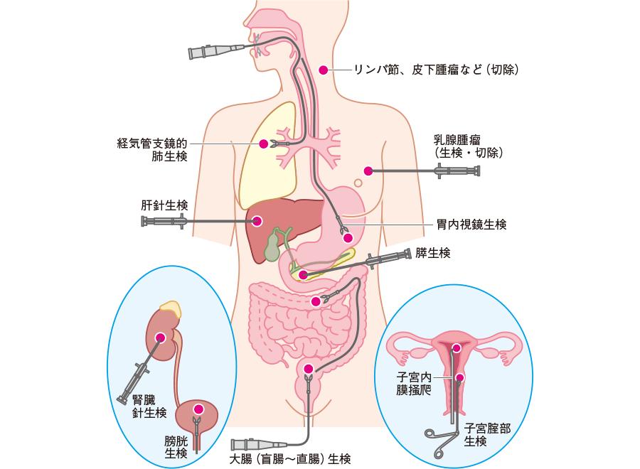 生検のおもな臓器・部位と採取法