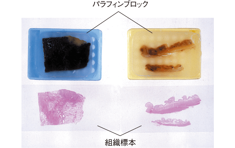 作製された病理組織標本