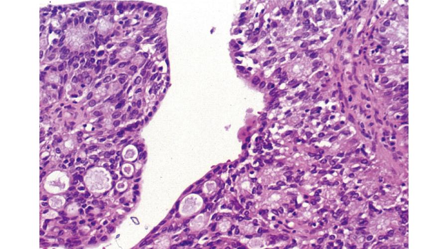 顕微鏡による病理組織像(腺癌組織)